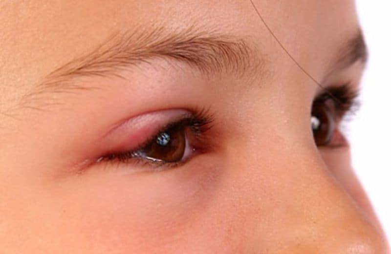 trẻ bị côn trùng đốt sưng mắt